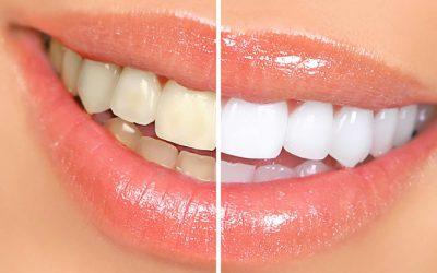 Teeth Whitening: Is It Safe?